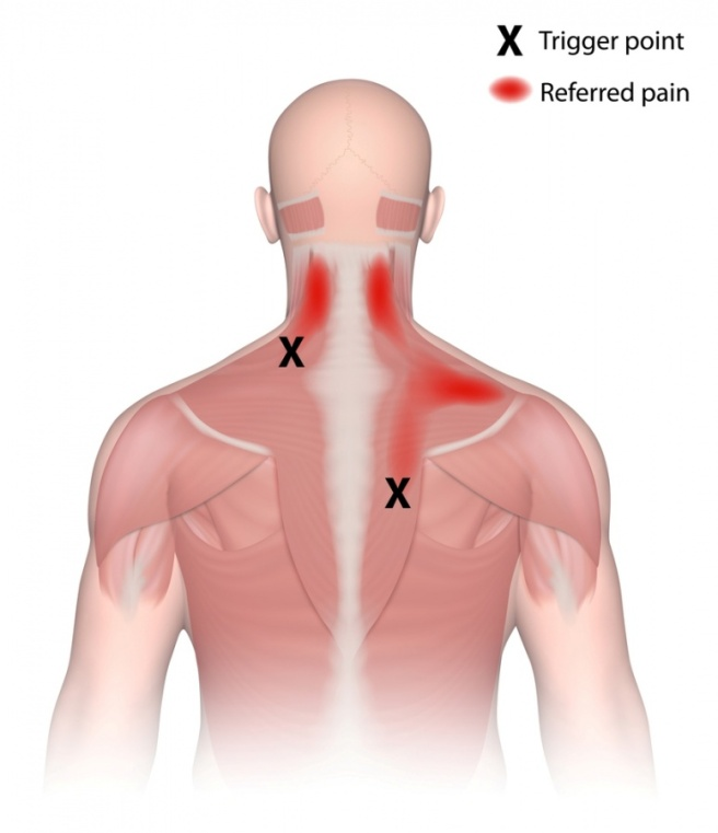 trigger-point-referred-pain-shutterstock_228843211