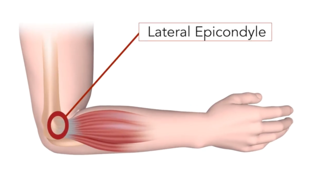 Tennis Elbow.png