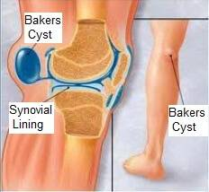 bakers-cyst