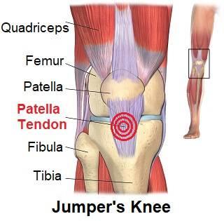 xpatellar-tendonitis-pain.jpg.pagespeed.ic.laQqJxZris