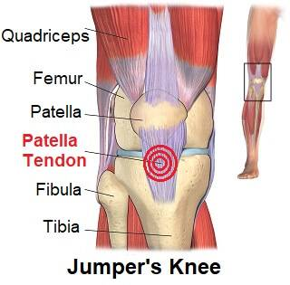 xpatellar-tendonitis-pain.jpg.pagespeed.ic.laQqJxZris